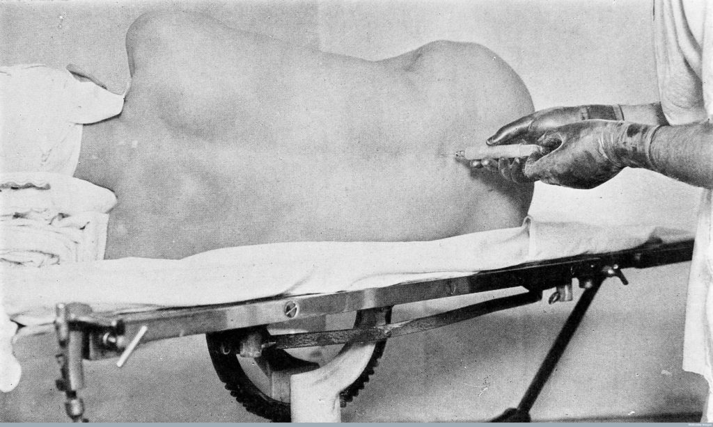 "M0009568 ""Spinal anaesthesia..."" Evans, 1929"