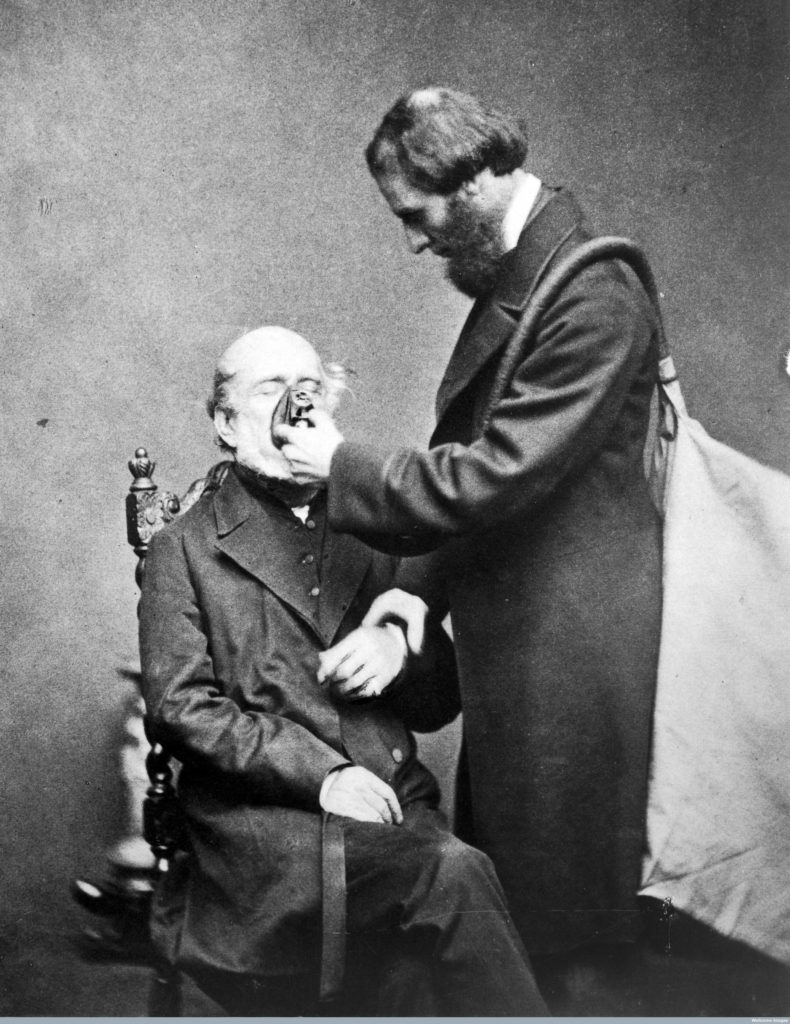 L0018240 Anaesthetics: J.T. Clover Credit: Wellcome Library, London. Wellcome Images images@wellcome.ac.uk http://wellcomeimages.org J.T. Clover administering of chloroform Published: - Copyrighted work available under Creative Commons Attribution only licence CC BY 4.0 http://creativecommons.org/licenses/by/4.0/